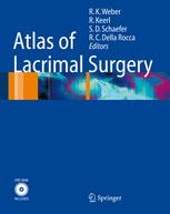 Atlas of Lacrimal Surgery