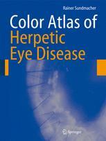 Color Atlas of Herpetic Eye Diseases