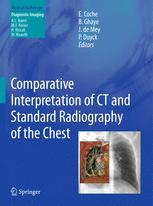 Comparative Interpretation of CT and Standard Radiography of the Chest