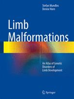 Limb Malformations