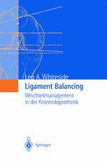 Ligament Balancing