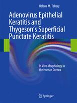 Adenovirus Epithelial Keratitis and Thygeson's Superficial Punctate Keratitis