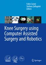 Knee Surgery using Computer Assisted Surgery and Robotics