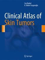 Clinical Atlas of Skin Tumors