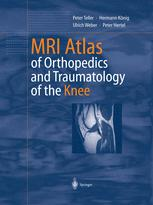 MRI Atlas of Orthopedics and Traumatology of the Knee
