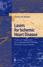 Lasers for Ischemic Heart Disease