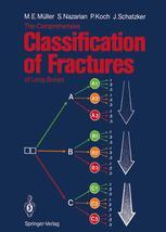 The Comprehensive Classification of Fractures of Long Bones