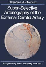 Super-Selective Arteriography of the External Carotid Artery