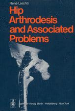 Hip Arthrodesis and Associated Problems