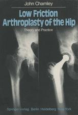 Low Friction Arthroplasty of the Hip