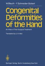 Congenital Deformities of the Hand