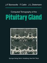 Computed Tomography of the Pituitary Gland