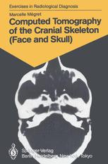Computed Tomography of the Cranial Skeleton (Face and Skull)