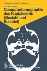 Computertomographie des Kopfskeletts (Gesicht und Schädel)