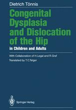 Congenital Dysplasia and Dislocation of the Hip in Children and Adults