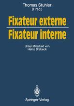 Fixateur externe — Fixateur interne