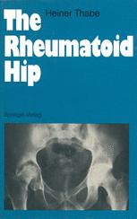 The Rheumatoid Hip