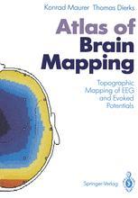 Atlas of Brain Mapping