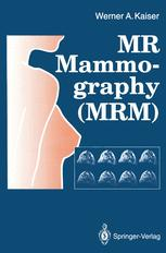 MR Mammography (MRM)