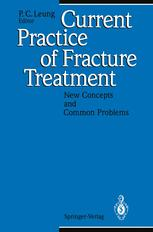 Current Practice of Fracture Treatment