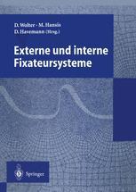 Externe und interne Fixateursysteme