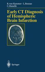 Early CT Diagnosis of Hemispheric Brain Infarction
