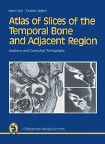 Atlas of Slices of the Temporal Bone and Adjacent Region