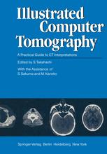 Illustrated Computer Tomography