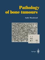 Pathology of bone tumours