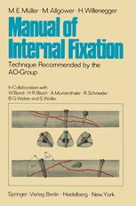 Manual of Internal Fixation