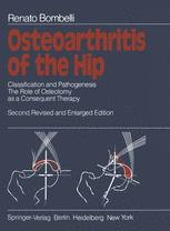 Osteoarthritis of the Hip