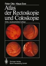 Atlas der Rectoskopie und Coloskopie