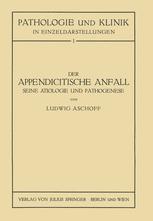 Der Appendicitische Anfall Seine Ätiologie und Pathogenese