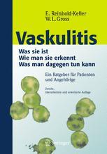 Vaskulitis