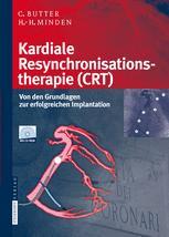Kardiale Resynchronisationstherapie (CRT)