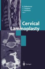 Cervical Laminoplasty
