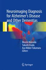 Neuroimaging Diagnosis for Alzheimer's Disease and Other Dementias