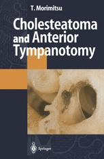 Cholesteatoma and Anterior Tympanotomy