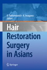 Hair Restoration Surgery in Asians