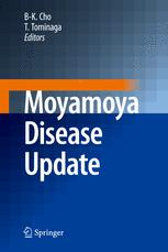 Moyamoya Disease Update