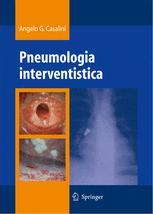 Pneumologia interventistica