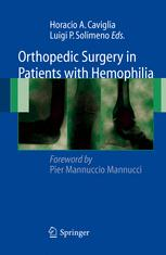 Orthopedic Surgery in Patients with Hemophilia