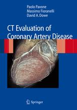 CT Evaluation of Coronary Artery Disease