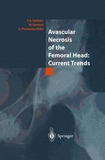 Avascular Necrosis of the Femoral Head: Current Trends