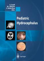 Pediatric Hydrocephalus