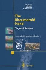 The Rheumatoid Hand
