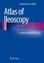Atlas of Ileoscopy