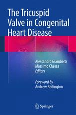 The Tricuspid Valve in Congenital Heart Disease