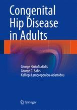 Congenital Hip Disease in Adults
