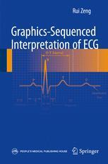 Graphics-sequenced interpretation of ECG